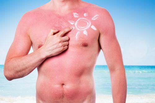 5 babských rád na spálenú pokožku od slnka