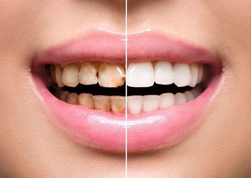Ak sa nestaráte o svoje zuby, hrozí vám aj predčasný pôrod