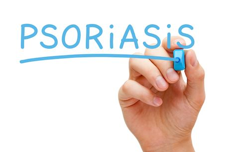 Nová biologická liečba na psoriazu