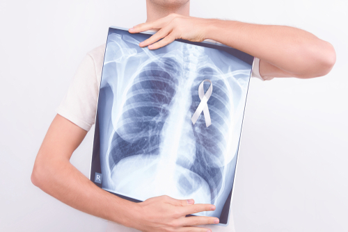 Každé štyri hodiny zomrie na Slovensku jeden pacient srakovinou pľúc