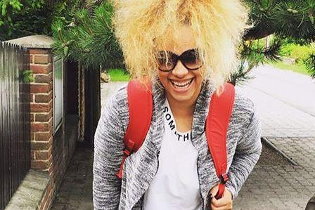 Speváčka Tina priznala sklerózu multiplex, štandardnú liečbu však odmieta